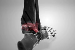 Ankle Fusion (Arthrodesis)