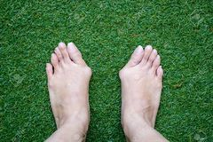 Bunions (hallux valgus) and lesser toe deformities treatment
